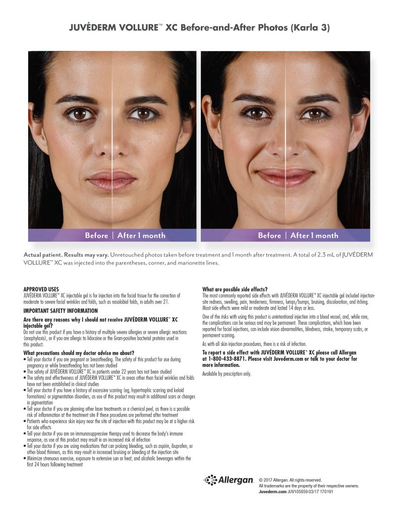 dermal fillers near me. Before and after picture.