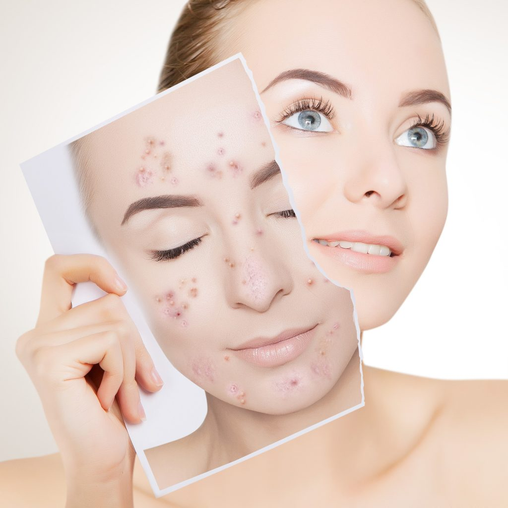 Acne Facial Near Me JoAnn Francis Medical Esthetics