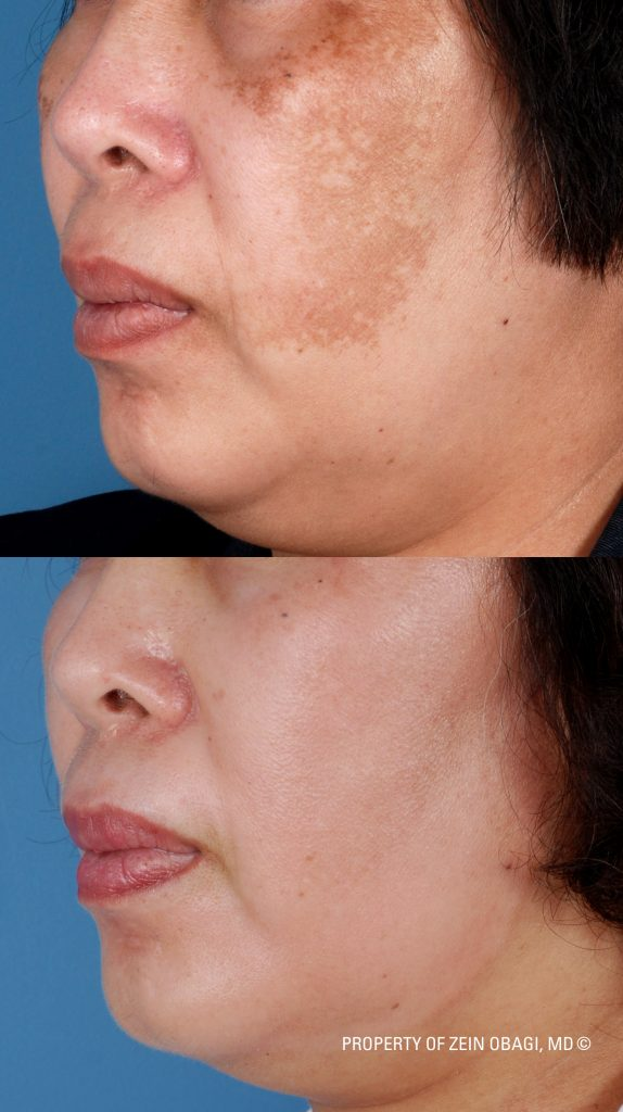 Melasma Treatments West Palm Beach FL Before and after photo