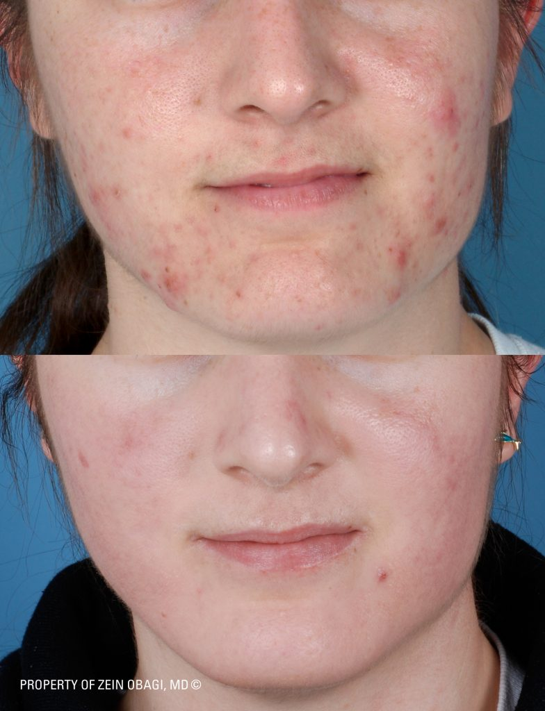 Acne Treatment Stuart FL. Before and After patient of Dr. Zein Obagi
