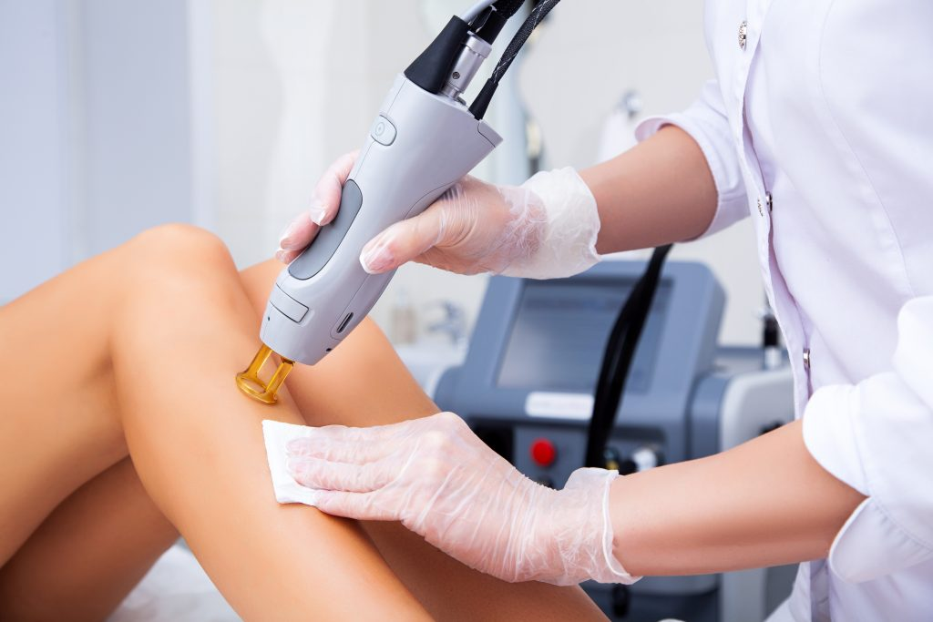 laser hair removal near me.